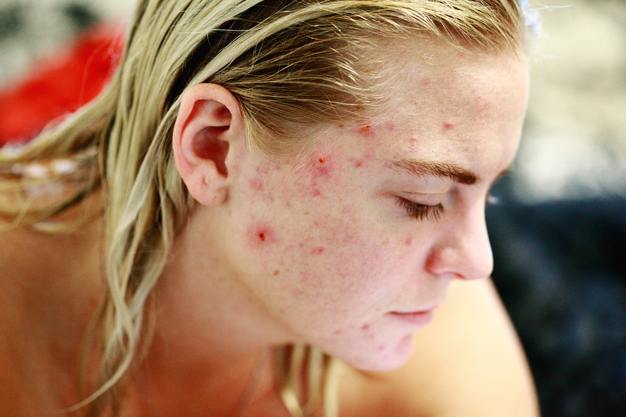 best superfoods for acne